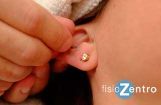 acupuntura para adelgazar madrid centro