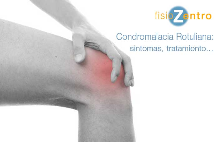 Condromalacia Rotuliana Sintomas Tratamiento Ejercicios